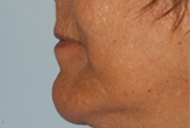 Chin Implant After - Dr. Paul Blair, Hurricane, WV