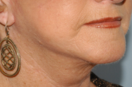 Platysmal Neck Lift After - Dr. Paul Blair, Hurricane, WV