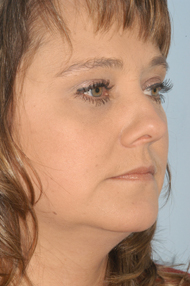 Facial Liposuction After - Dr. Paul Blair, Hurricane, WV