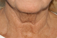 Platysmal Neck Lift Before - Dr. Paul Blair, Hurricane, WV