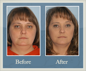 Facial Liposuction Before and After Hurricane, WV