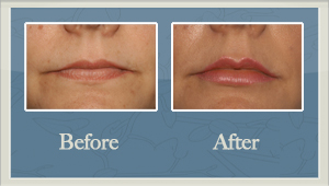 Facial Fillers Before and After Hurricane, WV