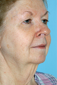 Facelift Before - Dr. Paul Blair, Hurricane, WV